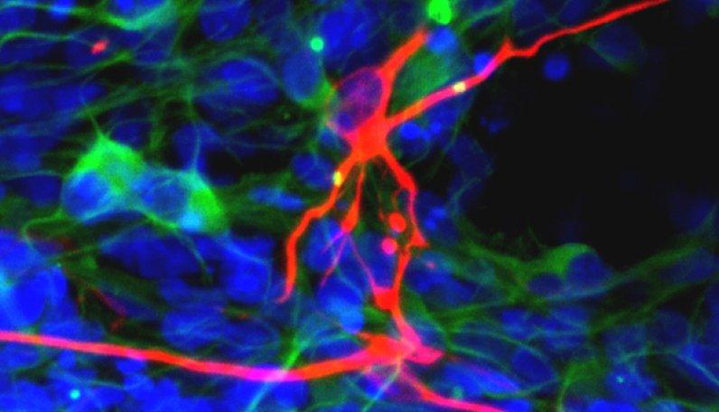 Nöromusküler hastalıklarda kök hücre uygulamaları hakkında açıklama