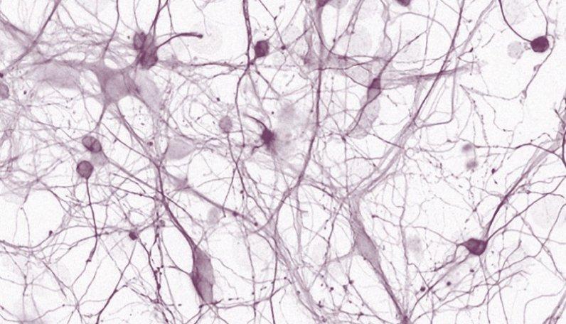 Nörodejenerasyon Araştırma Laboratuvarı  (NDAL)